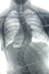 Severe scoliosis and osteoporosis caused by hyperparathyroidism in 15 year old boy.