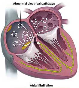 A-fib is rapid, non-organized contractions of the upper chambers of the heart, often caused by high blood calcium.