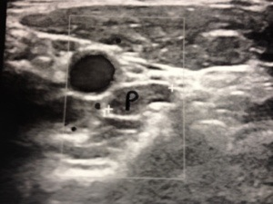 Ultrasound of ectopic parathyroid adenoma in carotid sheath