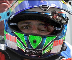 Felipe Massa Helmet Crash