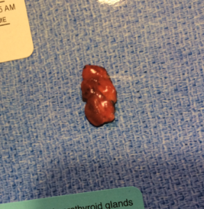 Parathyroid tumor removed at Norman Parathyroid Center after unsuccessful parathyroidectomy.