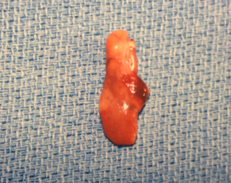 Parathyroid Adenoma at the Norman Parathyroid Center.